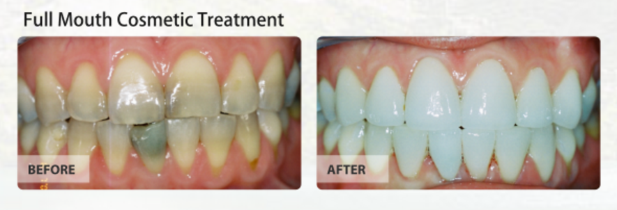 calvert_full_mouth_cosmetic_treatment